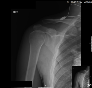 Radiographie Luxation